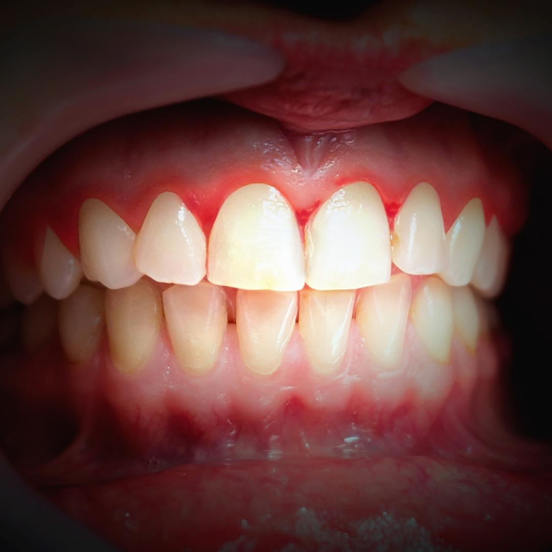 prevenir enfermedades periodontales
