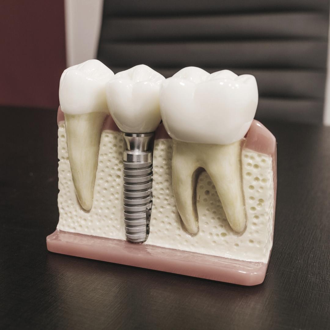 reponer diente
